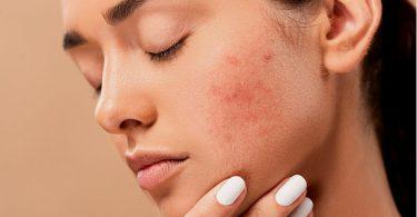 soin visage maison acné